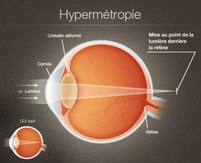 Hypermétropie1