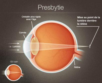 presbytie1
