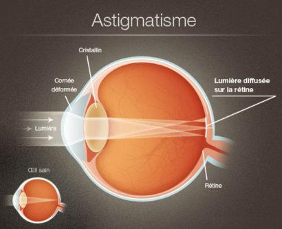 Astigmate1